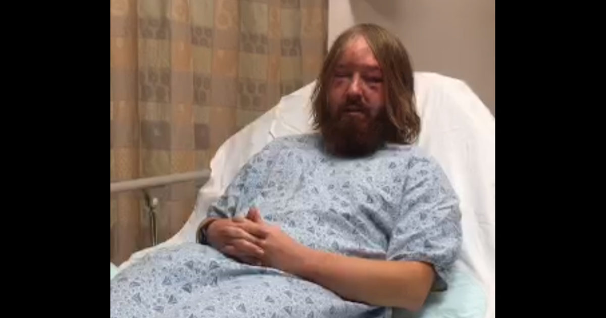 BREAKING: Trump Supporter Hospitalized After Being Viciously Attacked By Left-Wing Terrorists